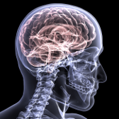 Wrightwood Brain Injury Attorney