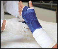 Coachella Valley Fracture Attorney