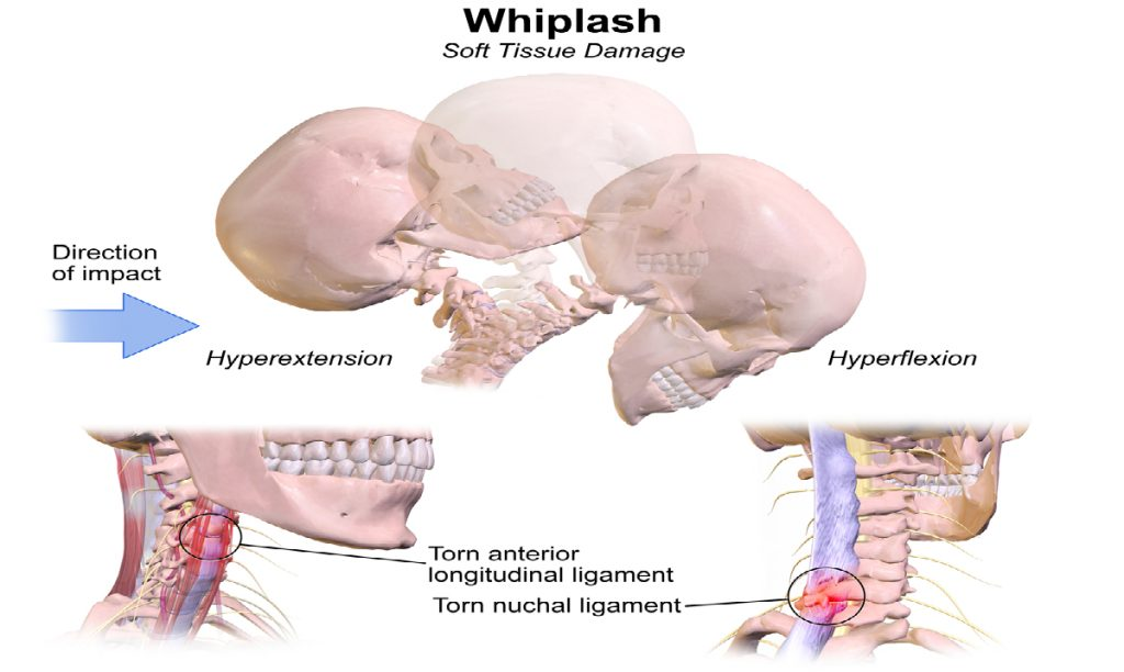 whiplash injury research papers Purpose: the aim of this study was to conduct a meta-synthesis to analyze qualitative research findings and thereby understand patients' experiences of whiplash-associated disorders (wad) and the injury-recovery process.