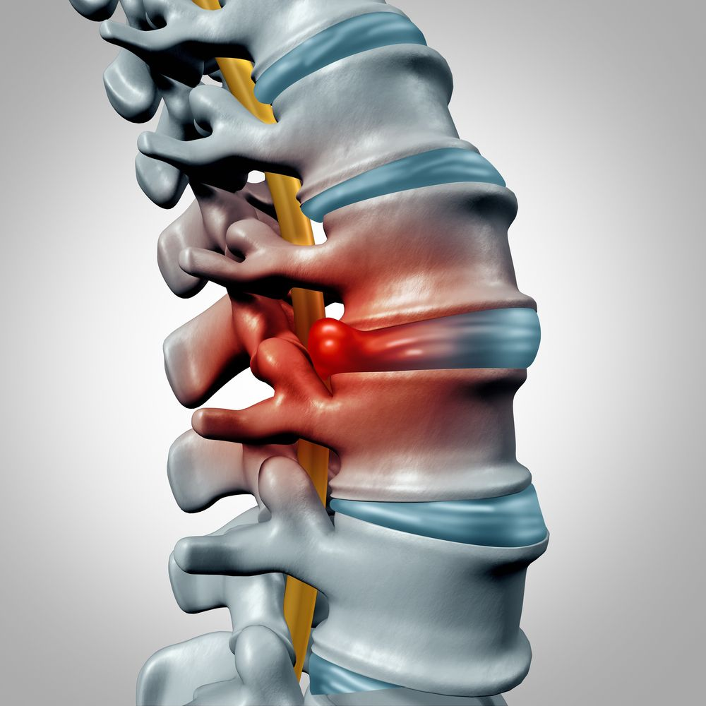 herniated disc injury