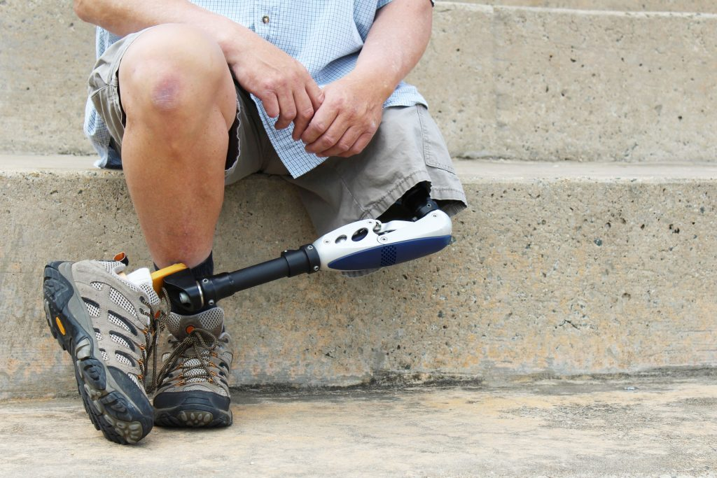 man sitting with prosthetic leg